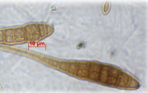 microscopic view of two long thin fungal spores