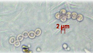 microscopic view of fungal spores in small round particles